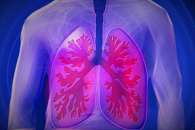 ostre zapalenie gardła