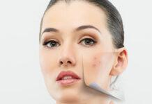Leczenie blizn po trądziku
